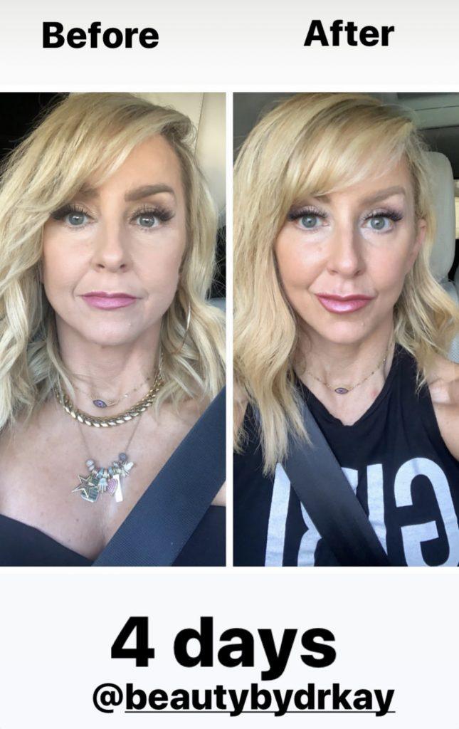 My Botox Results